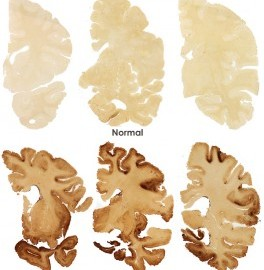 Medical Marijuana Cannabis prevents Chronic Traumatic Encephalopathy CTE