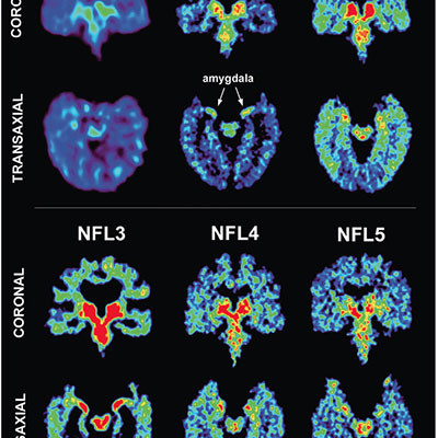 Medical marijuana cannabis prevents CTE from head injuries NFL