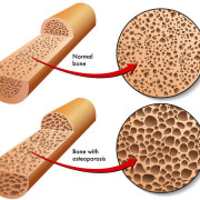 Medical cannabis can promote healthy bone metabolism and treat osteoporosis